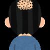 頭頂部の薄い髪型は改善可能?原因を徹底して希望が?